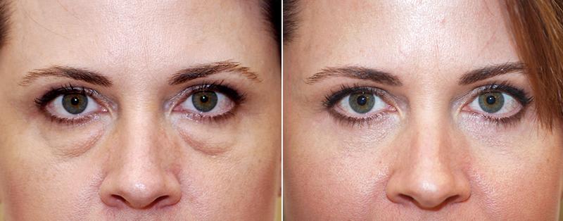 Блефаропластика от синяков под глазами